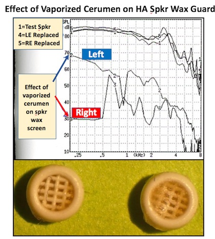 Figure 3. The impact of vaporized cerumen on a mesh-type hearing aid speaker wax screen (left). Both the left and right hearing aids were essentially non-functional as indicated by their respective response curves. Following wax guard replacement, both (curves 4 and 5 at the top) measured the same as a test speaker (curve 1 at the top).