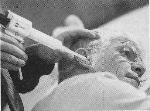 Figure 2. The XP ear impression was taken by filling the ear canal with a special low viscosity liquid silicone injected with an injection gun. This appears to be the first use of this combination for ear impressions. The gun and silicone were provided by Dreve Otoplastik, with the silicone being specially-made for this application.